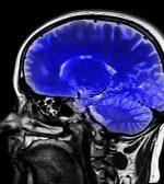 Qué es un aneurisma cerebral no roto como el que tuvo el extenista Juan Ignacio Chela